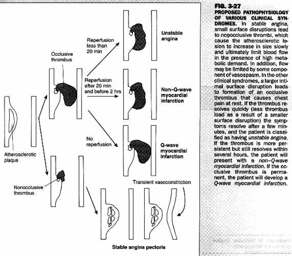 Pathophysiology Of Myocardial Infarction Diagram With Schematic