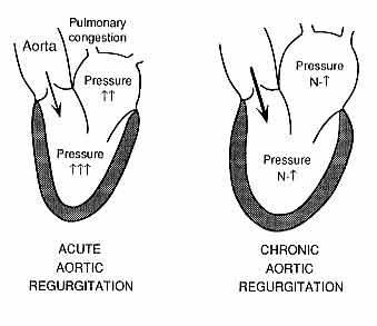 Valvular Heart Disease -- Kenneth Korr, M.D.
