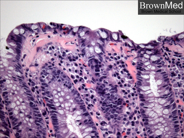 Collagenous Colitis Pathology Outlines