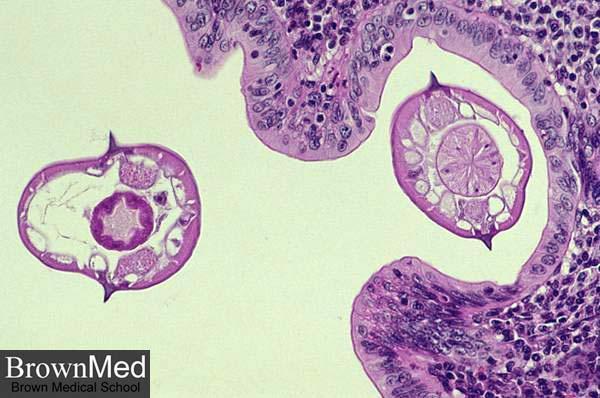 Pathology Outlines Enterobius Vermicularis