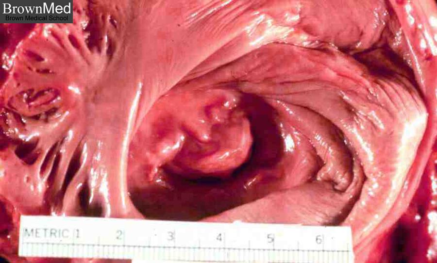 open heart surgery #10