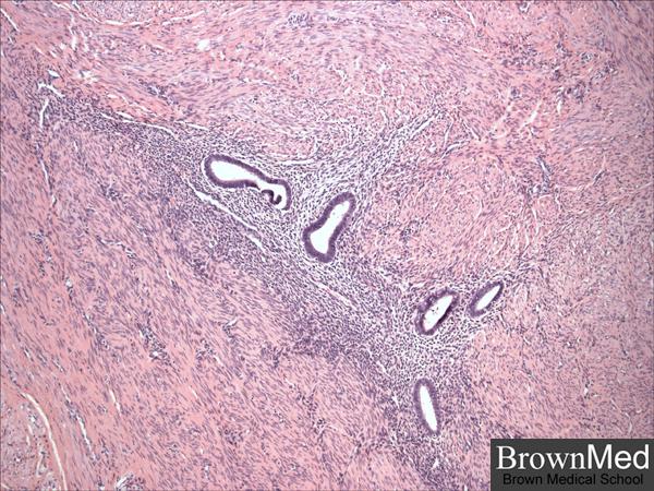 progestatifs norsteroides