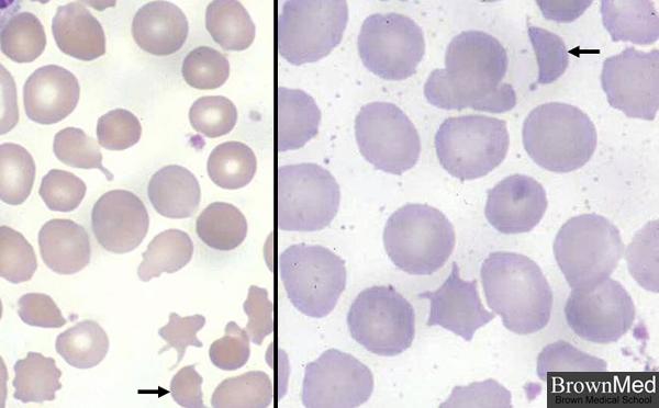 Helmet Cells And Schistocytes Helmet Cells