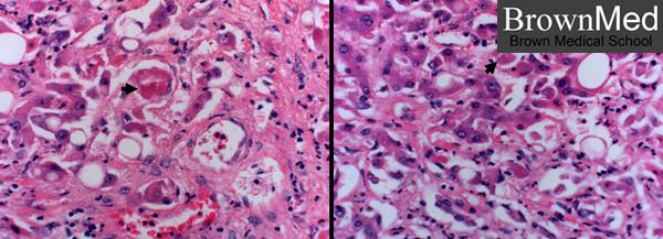 case study of alcoholic hepatitis