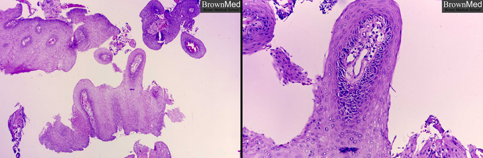 squamous papilloma larynx)
