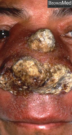 external image rhinoscleroma1.jpg