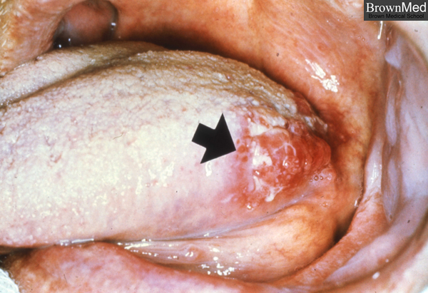 squamous cell carcinoma tongue wwwpixsharkcom images
