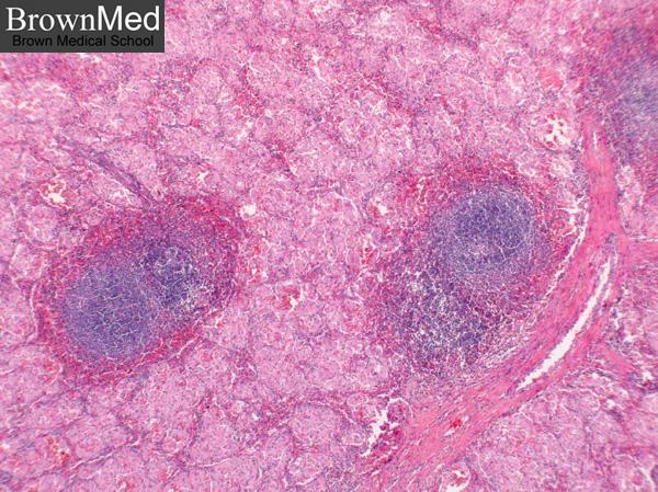 Photo Scanner Gaucher Disease