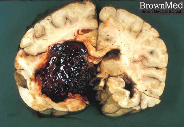 Brain hemorrhage healing time