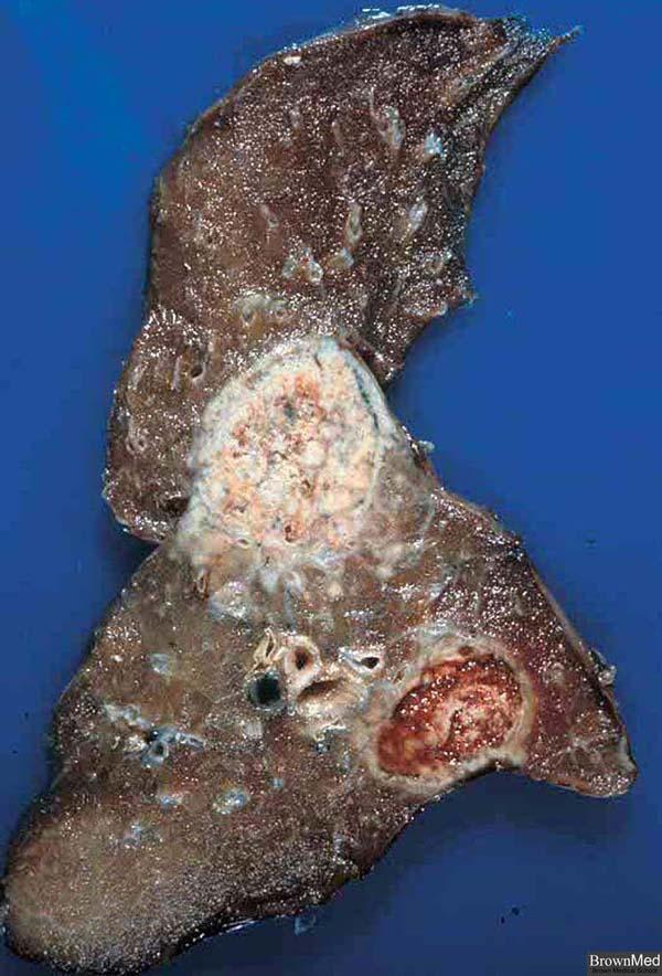 Lexapro granuloma annulare