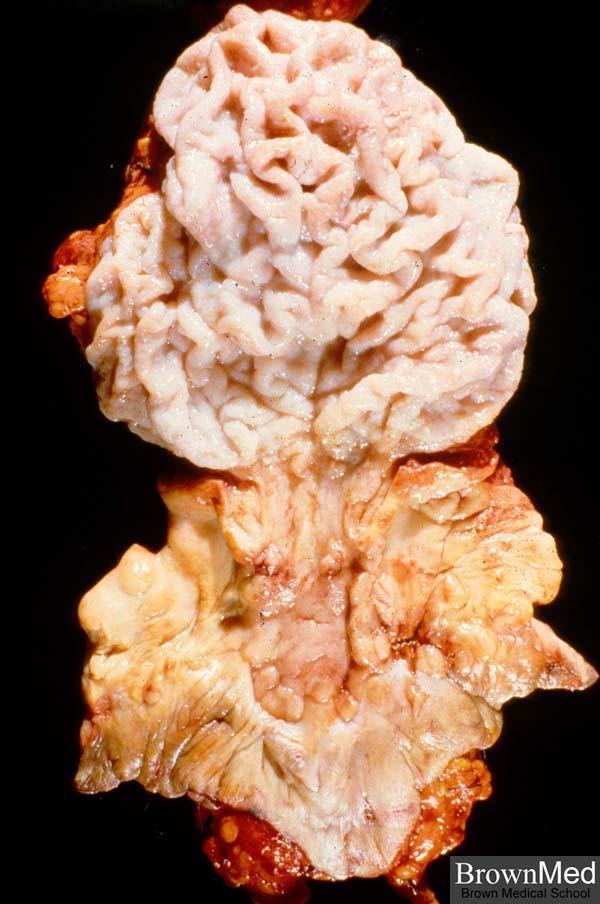 condyloma acuminatum vulva patológia körvonalazódik