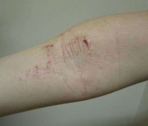 Study casts doubt about link between eczema and cardiovascular disease