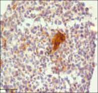 Immunoperoxidase histochemistry